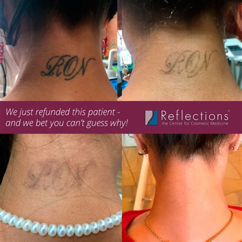 tattoo removal cost new jersey best piqo4 laser nj reflections center