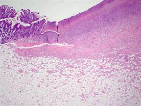 Serrated Polyp Pathology Outlines by Pathology Outlines Lipoma