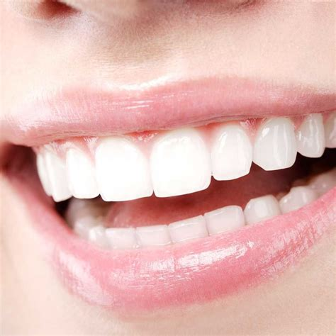 special offers cosmetic dentist  chester wrexham