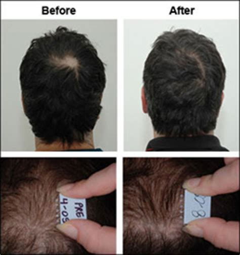 boys hair crown is my crown thinning short hairstyle 2013