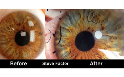 S Eye Color Changing After Detoxing by Steve Factor Before After Iridology Vegan What