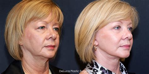 facelifts for women over 60 facelift before and after 60 year old plastic surgery
