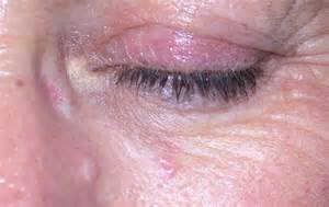 sebaceous hyperplasia treatment at home cost effective sebaceous hyperplasia treatment in hshire