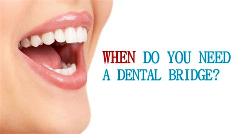 How Do You The Right Dentist 2 by When Do You Need A Dental Bridge