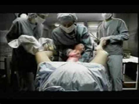 imagenes de niños que nacen pegados in sala da parto padre impazzito youtube