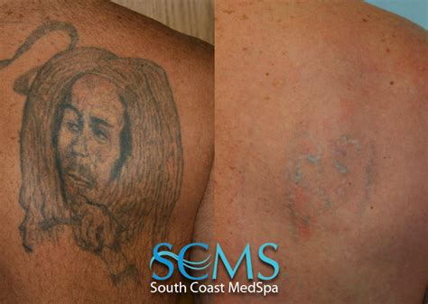 back tattoo removal 16 removal before after laser