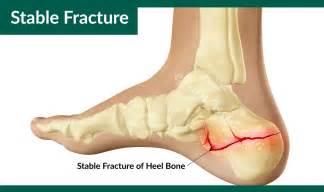 calcaneus fracture or broken heel treatment recovery
