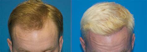 great frontal hair line 1000 graft follicular unit extraction carolina hair surgery