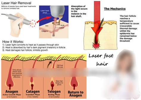 does hair of the work how does laser hair removal work follikill permanent hair removal