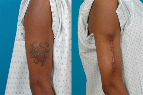 tattoo excision pictures tattoo removal online training