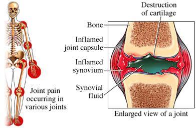 résumé definition rheumatoid arthritis what is it symptoms causes