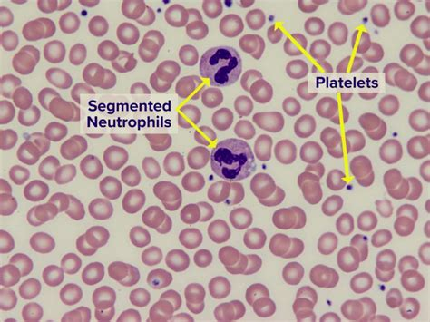 what color are platelets blood smear understand the test