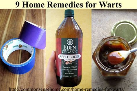 planters wart home remedy home remedies for warts