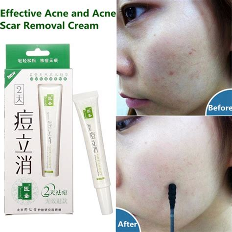tattoo diminishing cream natural plant acne shrink pores vanishing cream scar