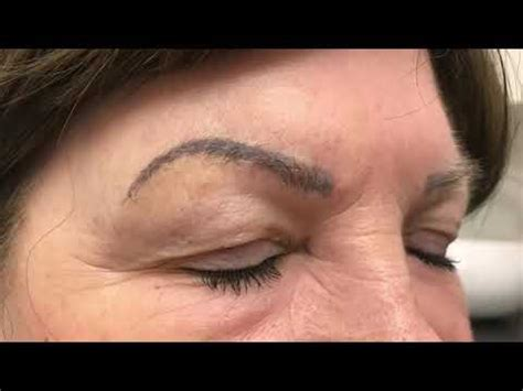 rejuvi tattoo removal eyebrows youtube laser eyebrow removal before and after