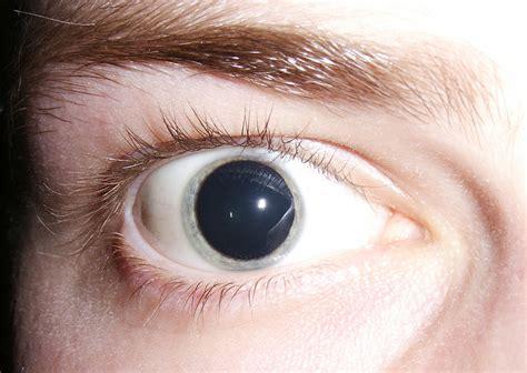 imagenes de ojos normales midriasis wikipedia la enciclopedia libre