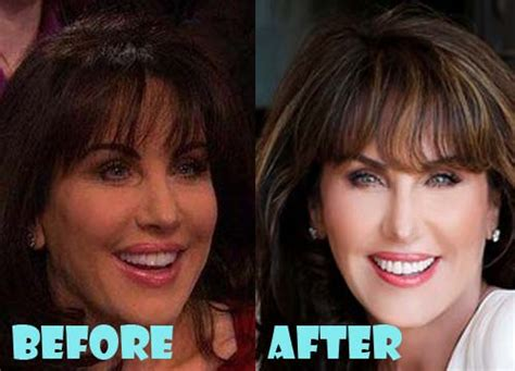 has anyone seen robin mcgraw dr phils wife recently robin mcgraw plastic surgery before and after picture