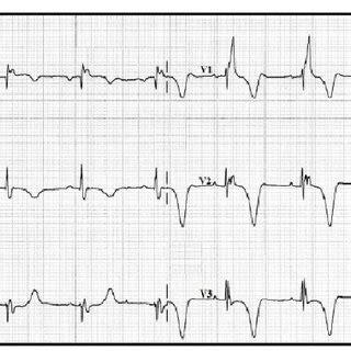 immediate postoperative electrocardiogram sinus rhythm