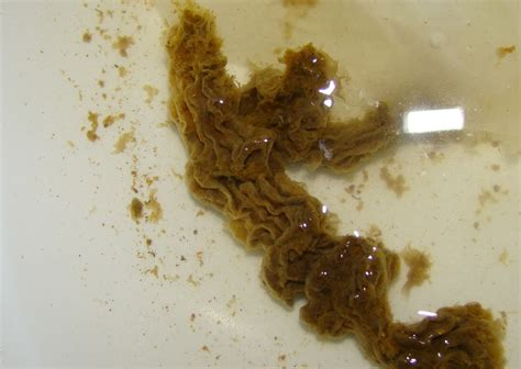 What Do Worms Look Like In Human Stool by Pinworms In Human Stool