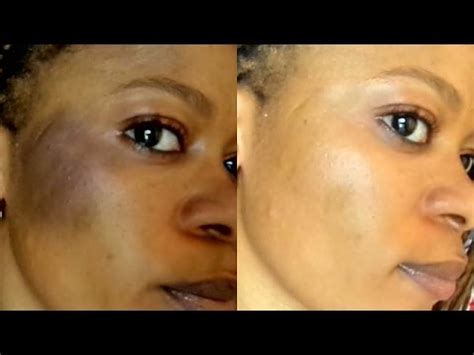 can you black people use splat how to heal or cure sunburn natually at home fast result