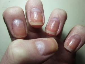 White Nail Beds by White Nail Beds Med Health Daily