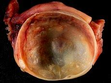ovarian cyst wikipedia   encyclopedia