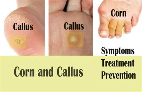 15 home remedies to get rid of calluses and corns