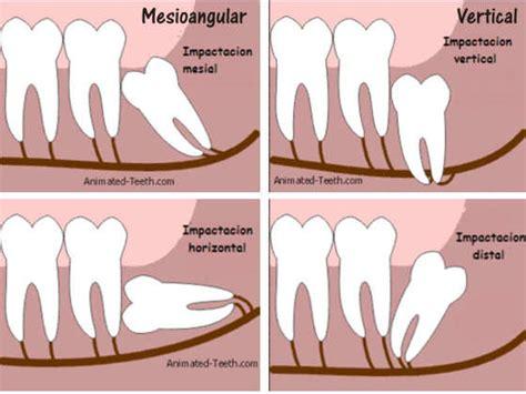 Horas Miring tratamientos dentales recomendaciones previas a la