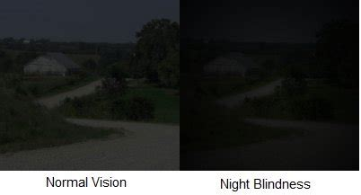 How To Fix Night Blindness Night Blindness Causes Of Nyctalopia And Treatments Available