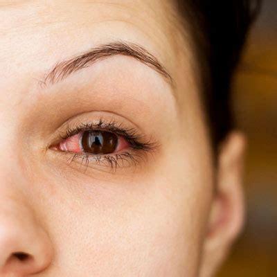 pink eye pink eye learn conjunctivitis treatments home remedies