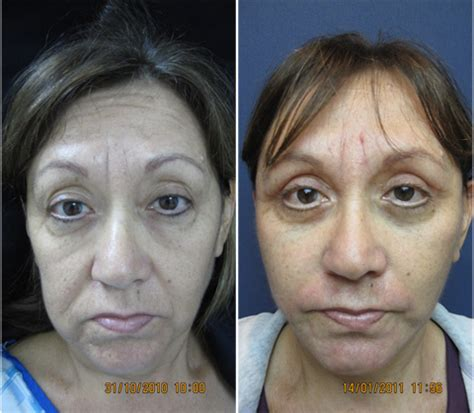 women face lift women facelift vire facelift in tijuana