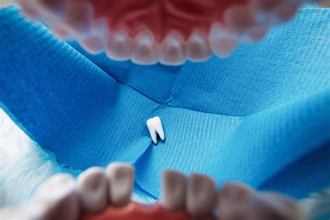comfort dental surgery holiday oral surgery what to do in a dental emergency
