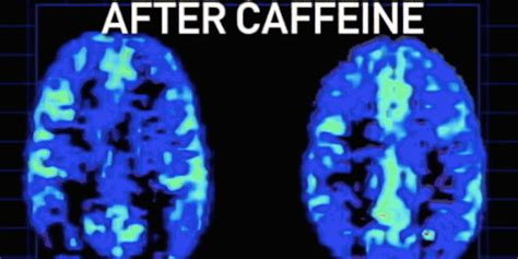 12 Amazing Facts About Coffee And Caffeine That May