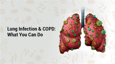 blogger lung lung infection and copd signs and symptoms lung institute