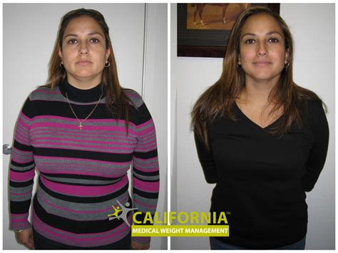 before and after haircuts el paso tx weight loss clinic el paso tx berry blog