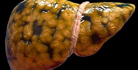 alimenti disintossicano il fegato forse non lo sapete ma in questi 6 modi state