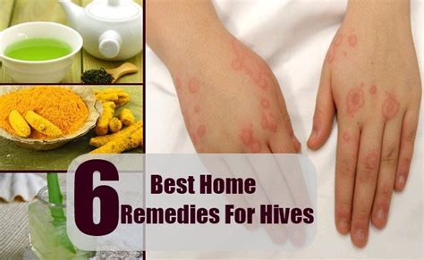 6 best home remedies for hives treatment and cure for