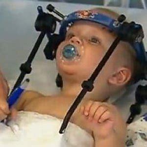 alimentazione bimbi 16 mesi australia operazione miracolosa quot riattacca quot la testa a un