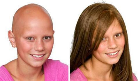 before and after photos alopecia antrogenetic women восстановление волос после химиотерапии лечебное