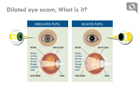 dilated eye what is it a dilated vision allows
