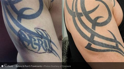 tattoo removal salisbury reset room before after photos of picosure laser