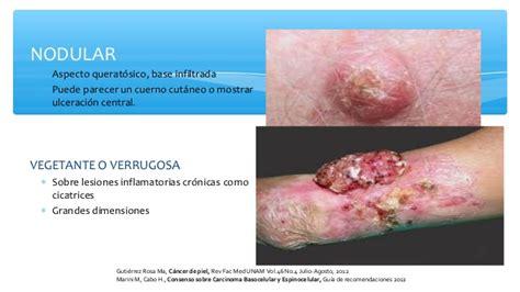 cancer de piel cancer de piel nieves fernandez