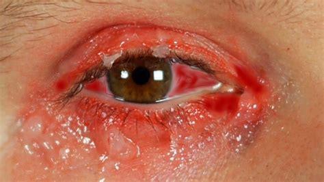 Sprei Eye Pink worst pink eye