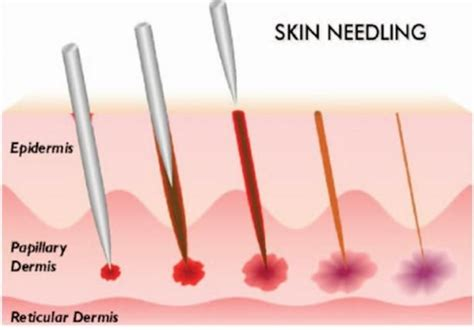 how derma roller or micro needling works aging