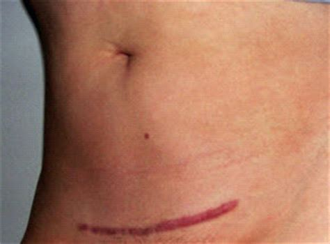 massaging c section scar the physical and emotional mark of a c section scar