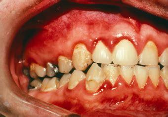 Cairan Pembersih Karang Gigi zone penyakit pada gingiva gusi