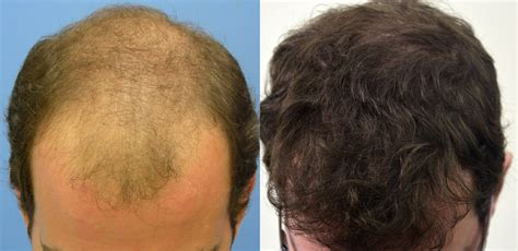 hair transplants 1000 graft coverage bar raising result dr hasson 5820 grafts one surgery 5