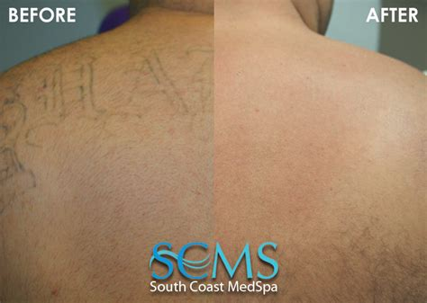 does laser tattoo removal scar laser removal gallery before and after laser