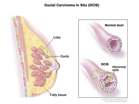 latest dcis breast cancer news and research dcis mystory risk of breast cancer death is low after dcis diagnosis