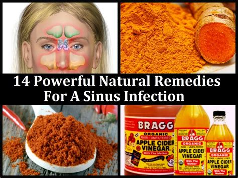 cure a sinus infection with remedies review ebooks